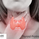 5 Ways Thyroid Problems Can Affect Your *** Life